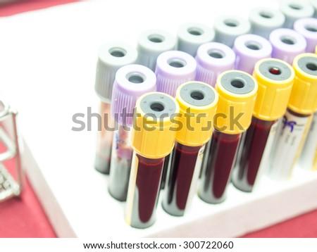 Blood sampling - stock photo