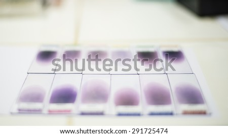 Blood smear for CBC test. - stock photo