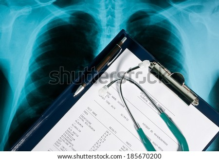Blood test results with a clipboard and stethoscope on Xray photo of lungs - stock photo