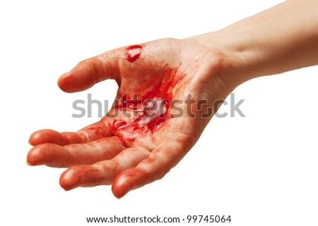 Bloody hand symbolizing injury or crime. - stock photo
