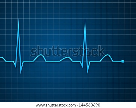 Blue ecg graph - stock photo