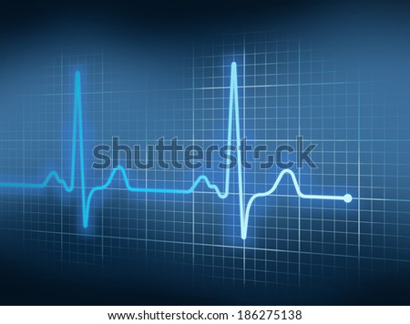 Blue Electrocardiography Heart Beat Pulse on Graph. - stock photo