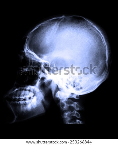 Blue X-ray image of human lateral skull in order to detect abnormalities or damage that occurs to the patientskull. - stock photo