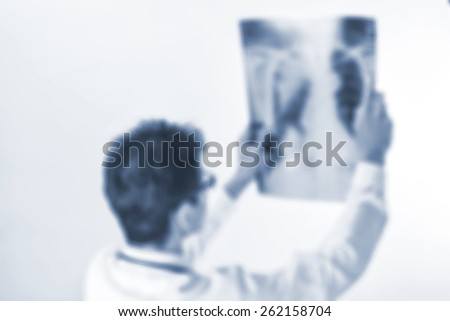 Blurred  Doctors wing film X-ray of the patient,Concept X-ray background - stock photo
