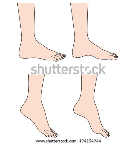 Illustration Normal Rocker Bottom Charcot Foot Stock ...
