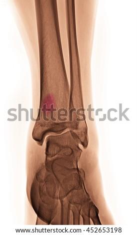 bone cancer  - stock photo