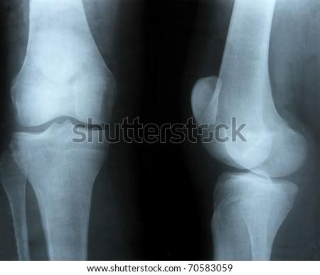bones at x-rays lights - stock photo