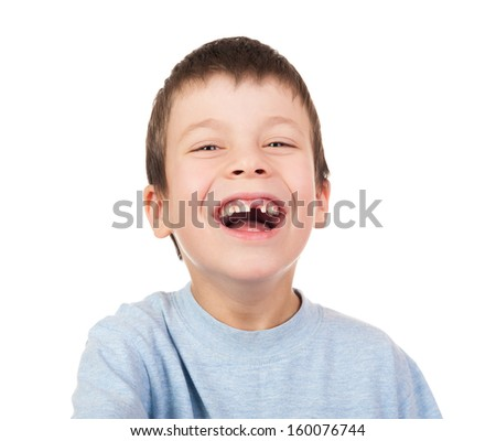 Boy portrait with a lost tooth - stock photo