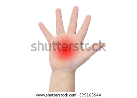 Boy's hand with a red palm