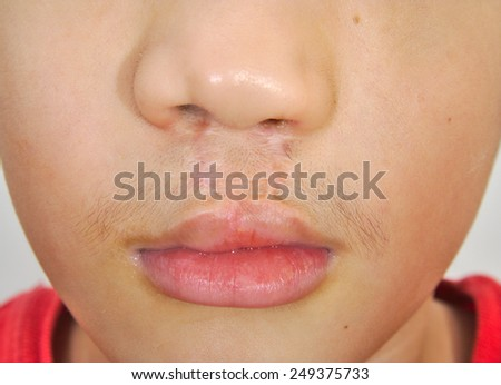 Boy showing a bilateral cleft lip repaired