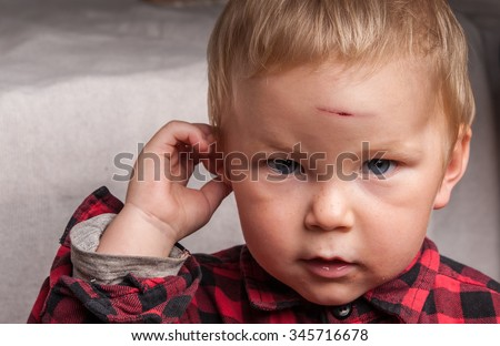 boy with a head wound - stock photo