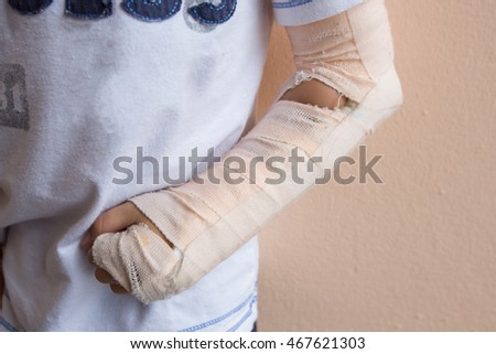 boy with arm solf splint
