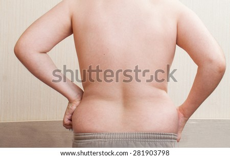 Boy 11 years metabolic disorder. belly child obese patients.child suffer from being overweight. childhood obesity - stock photo