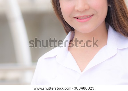 braces and white teeth of smiling girl
