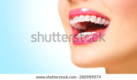 Braces. Beautiful Woman healthy smile close up. Closeup Ceramic Braces on Teeth. Beautiful Female Smile with Braces. Orthodontic Treatment. Dental care Concept. Beautiful Lips and Teeth - stock photo