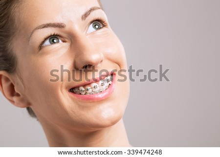 Braces Teeth Female Smile on gray background