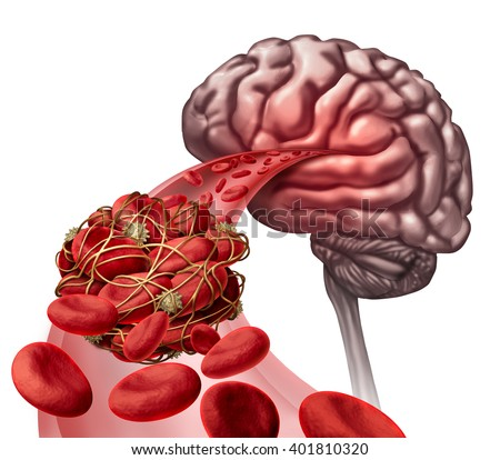Brain blood clot medical concept as 3D illustration blood cells blocked by an artery blockage thrombus causing a blockage of blood flow to the neurology anatomy. - stock photo