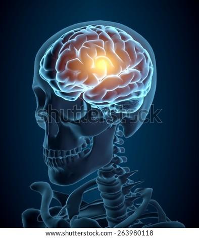 Brain. 3D. Headache illustration - stock photo