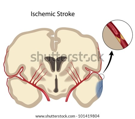 Brain ischemic stroke