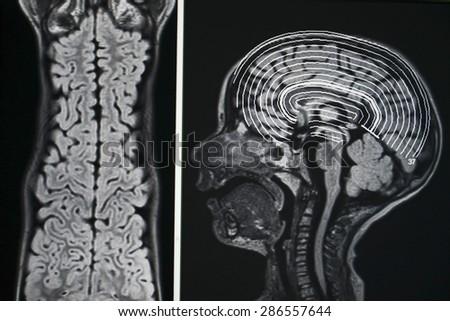 Brain MRI - seizures - stock photo