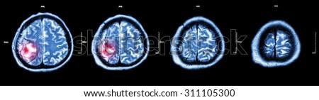 Brain tumor  ( Film CT-scan of brain : show part of brain with tumor ) - stock photo