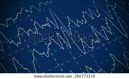 Brain wave on electroencephalogram EEG for epilepsy - stock photo