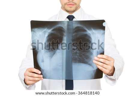 Breathing problems? Cropped studio shot of a male doctor examining an x-ray of lungs and ribs of his patient  - stock photo