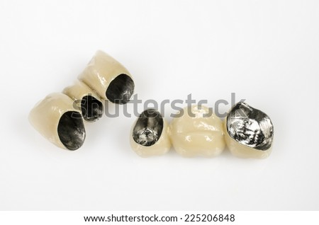 bridges, ceramics and non-precious metal - stock photo
