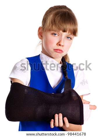 Broken arm in a cast. Isolated. - stock photo