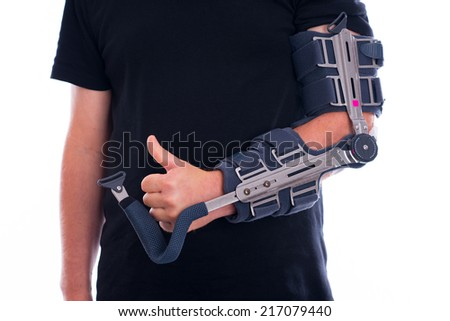 broken arm with thumb up - stock photo