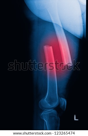 broken human thigh x-rays image ,Left leg fracture - stock photo