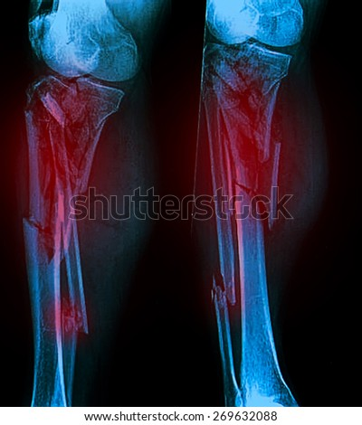 Broken leg / Many others X-ray images in my portfolio. - stock photo