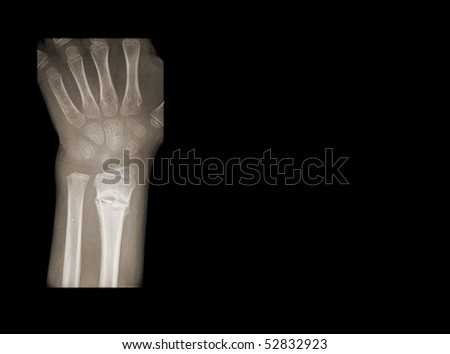 broken wrist of a young girl isolated on black background - stock photo