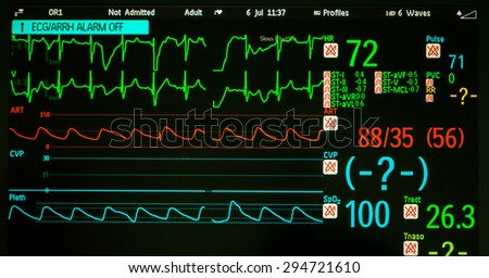 Cardiac monitor in operating room - stock photo