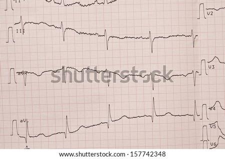 Cardiogram. ECG shows the heart beat  - stock photo