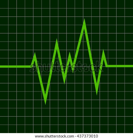 cardiogram graph on a dark background