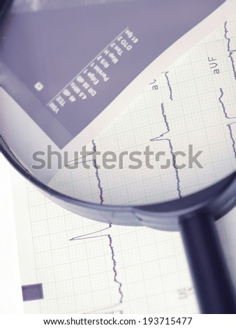 cardiogram on the magnifying glass