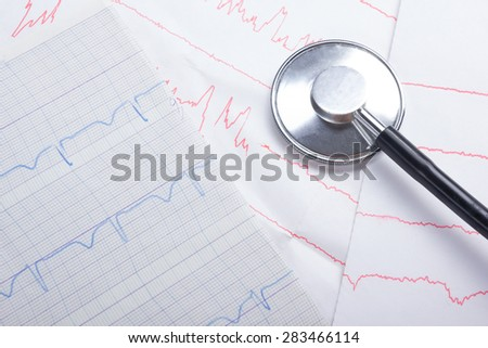 Cardiogram pulse trace and stethoscope concept for cardiovascular medical exam, closeup  - stock photo