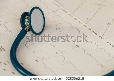 Cardiogram with stethoscope. - stock photo