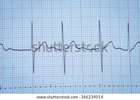cardiology and electrocardiogram and heart and life and medical - stock photo