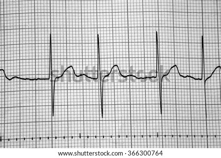 cardiology and medical and heart  - stock photo