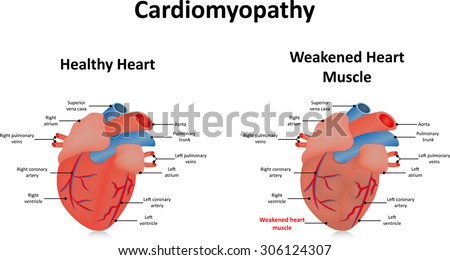 cardiomyopathy stock images, royalty-free images & vectors, Skeleton