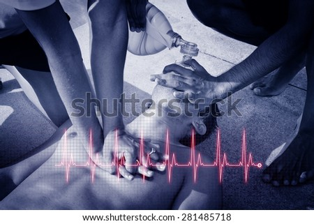 Cardiopulmonary resuscitation (CPR). Cardiogram concept. - stock photo