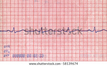cardiovascular diagram closeup. cardio diagnostic results of patient. healthcare measuring visualization, medical pulse background - stock photo