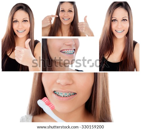Care your teeth. Photo sequence of girl with brackets - stock photo