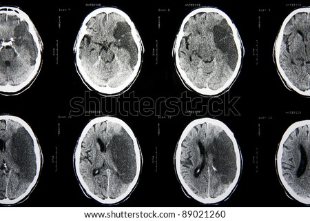 Cat scan of the brain - stock photo