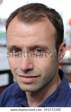 Caucasian man and hair loss issue - stock photo