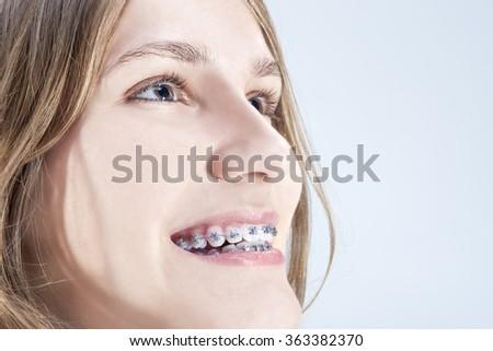 Caucasian Teenage Girl Showing Her Teeth Brackets. Posing Indoors Against White Background. Horizontal Image - stock photo