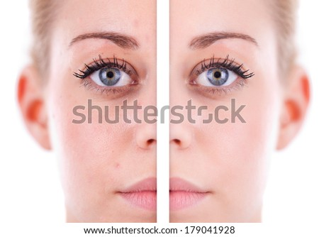 Caucasian woman's face skin, beauty concept before and after contrast, power of retouch - stock photo