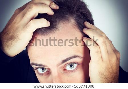 Caucasian young man controls hair loss - stock photo